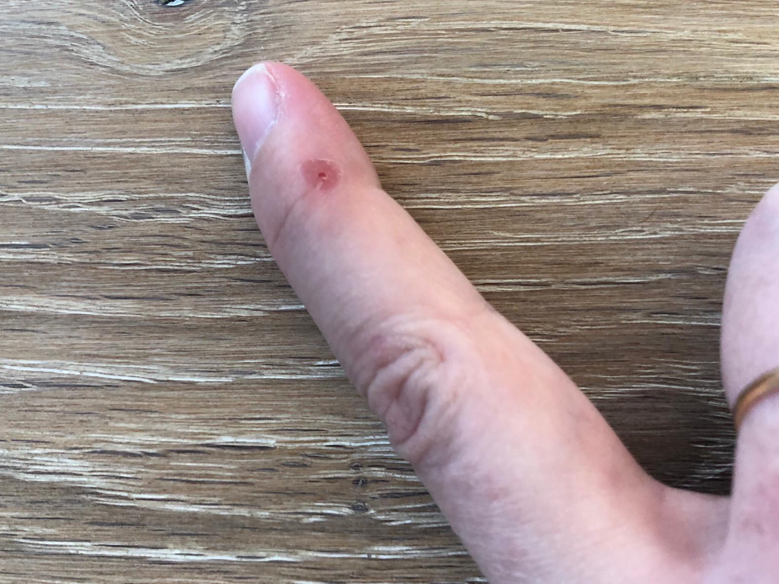 Blaar op mijn vinger